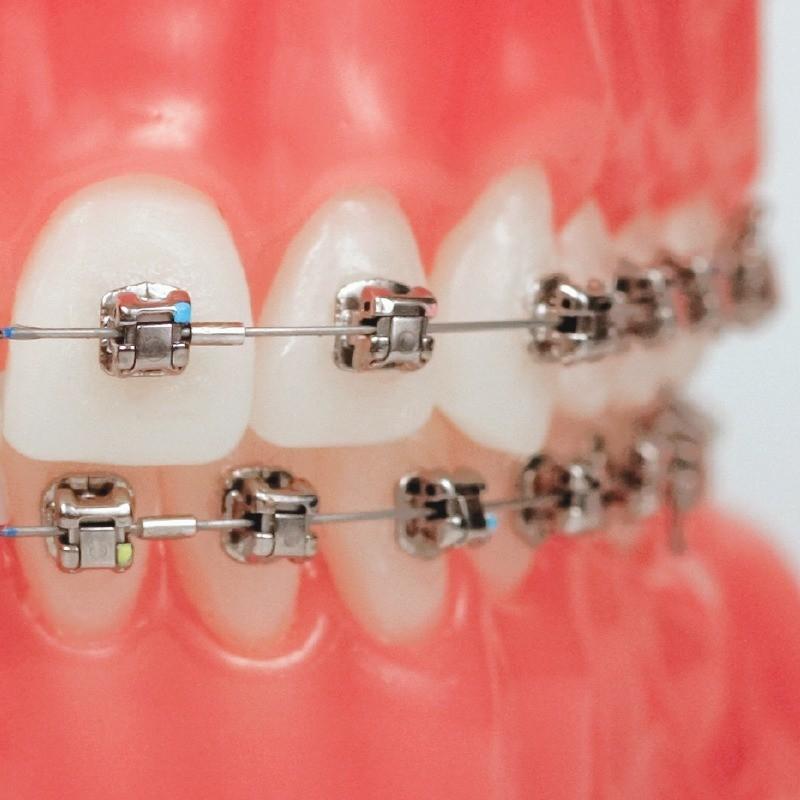 damon-braces